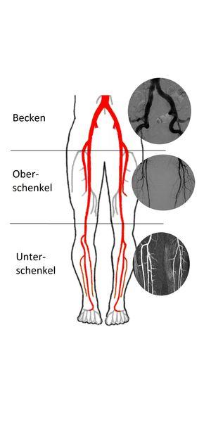 Gefäßchirurgie - khs